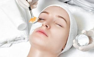 chemical-peel-treatment