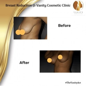 Breast-Reduction-Before-After-Set-Two