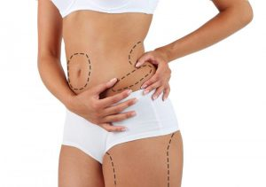 Body Sculpting with liposuction blog